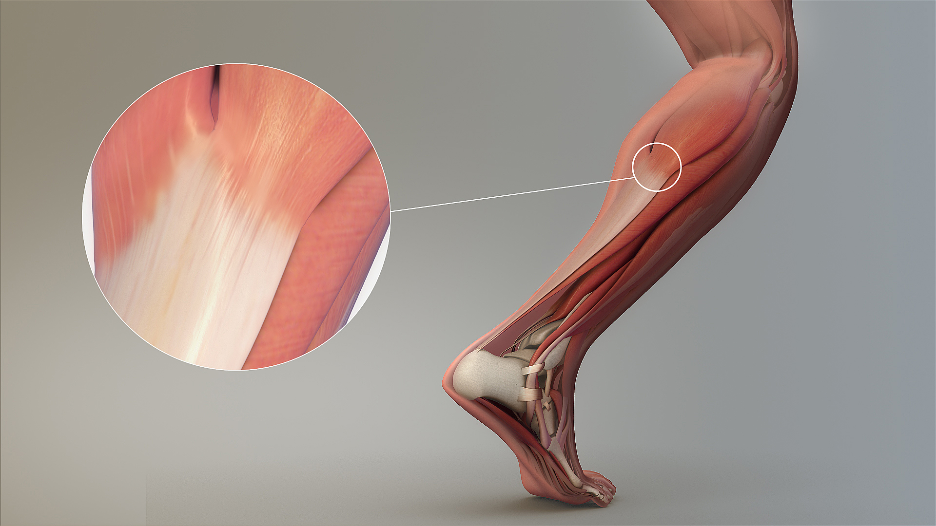 View of the achilles tendon during running